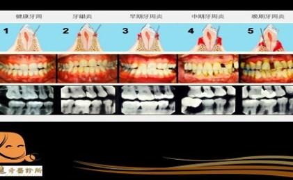 口腔的土石流 🏔🏔🏔—牙周病的形成