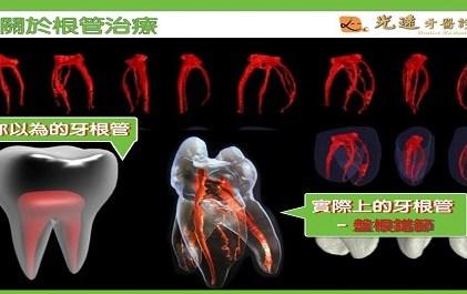 〖牙牙學院-複雜的牙根管系統〗