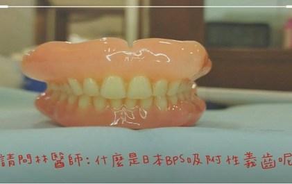 光遠牙醫 林子傑醫師 吸附式全口活動假牙