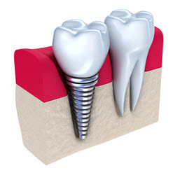Dental Implant - Implanted into the jawbone