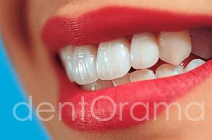 Estetik Diş Hekimliği, Dentorama Kavacık Beykoz
