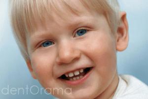 cocuklarda diş ayrıklığı