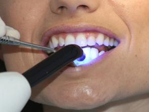 Un dentiste prend soin de vos dents et de votre sourire à l'aide d'une technique de blanchiment sans risque pour l'émail des dents et vos gencives.