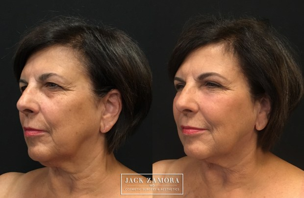 Carol Doing of Englewood had a J-Plazty with Adipose Stem Cell Rejuvenation and upper blepharoplasty.