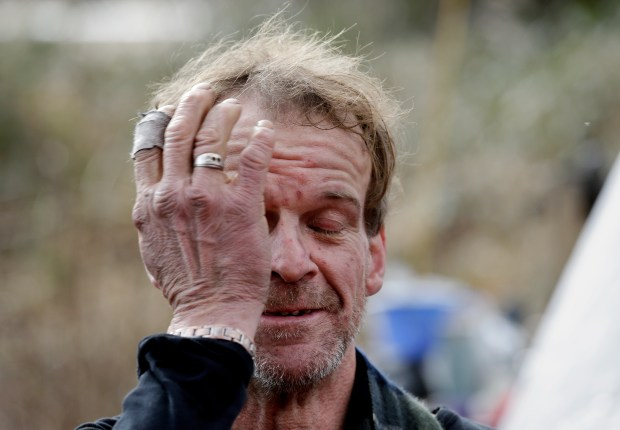 In this Feb. 16, 2017, photo, Parker O'Neall, a homeless man living in a shelter of tarps in an encampment in the outskirts of Everett, Wash., rubs his face as he talks with police and social workers checking on him.