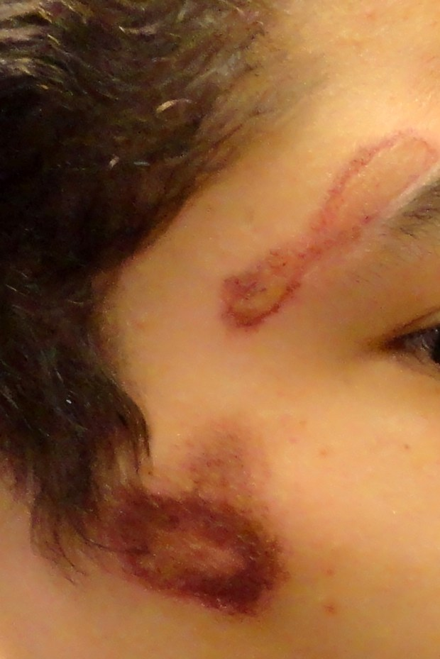 This Sept. 2015 image shows rug burns of the face of a detainee at the Colorado Division of Youth Corrections Lookout Mountain Youth Services Center.