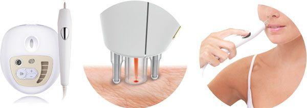 depilacion laser en casa