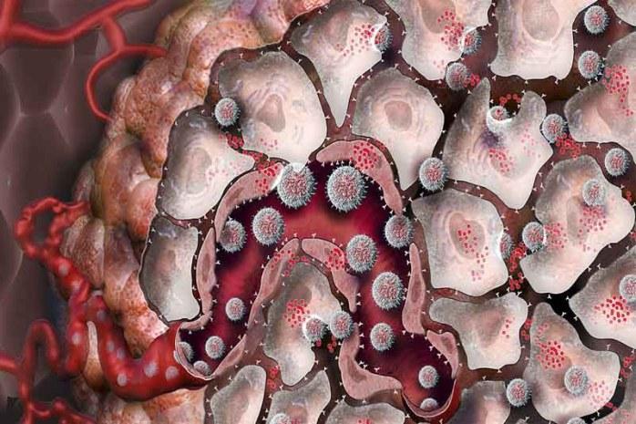 fight-against-tumours