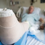 patient lying in hospital bed with broken leg bone wrapped in cast