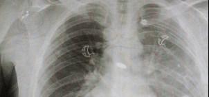Derek Herrera Bullet Spinal Cord Injury Bethesda 2560 2 @2x