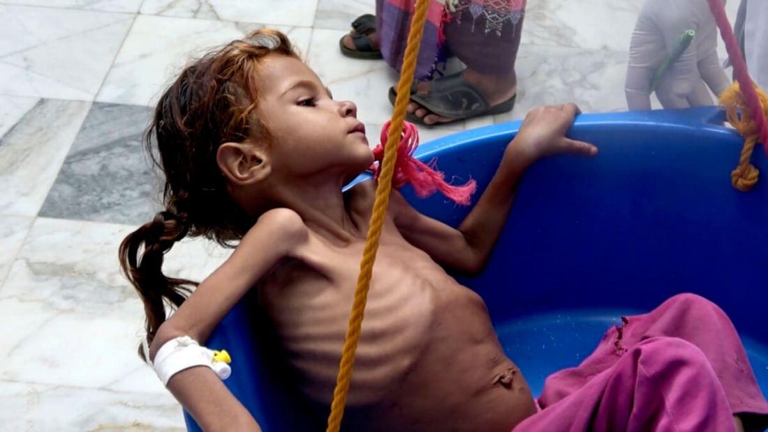 I Jemen har de hatt mer enn to millioner  kolera-tilfeller på grunn av Saudi/US-politkken. Noen sykdommer kan vi behandle.