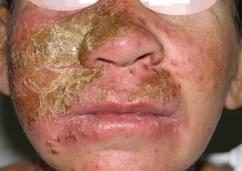 doenças ginecologicas femininas fotos