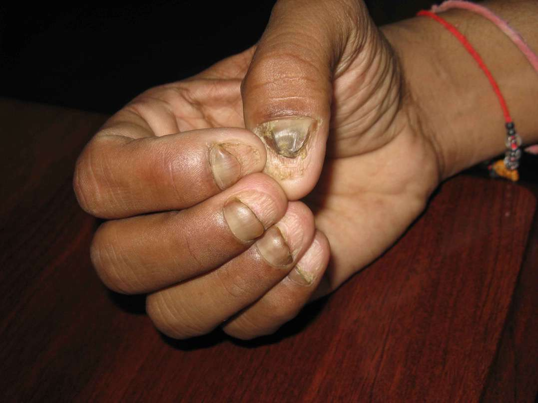 Nail Dystrophy - dermacosm