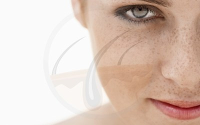 Why is your skin getting darker – learn about hyperpigmentation