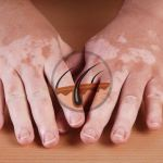 White spots on skin: myths & facts about vitiligo