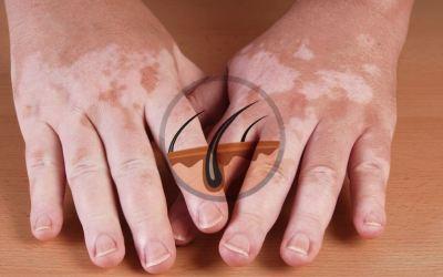 White spots on skin: myths & facts about vitiligo