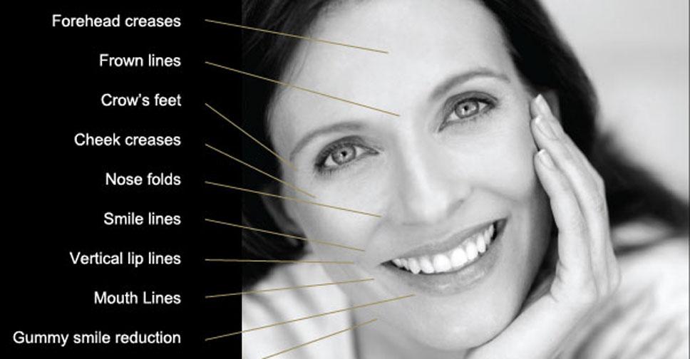 Anti Wrinkle Injection Anti-Wrinkle Injections