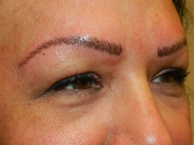 After Permanent Eyebrows b