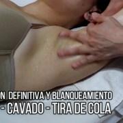 blanqueamiento-y-depilacion-de-axilas