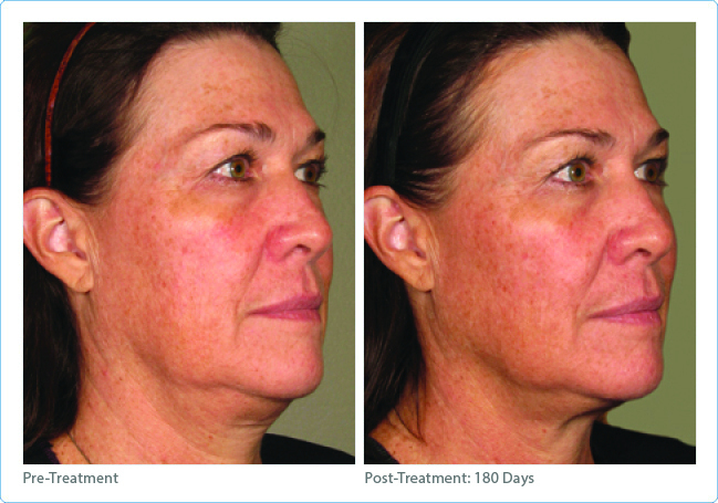 Ultherapy®~ Uplifting Ultrasound! – Cosmetic & Laser Surgery Institute