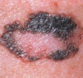 Melanoma with Regression