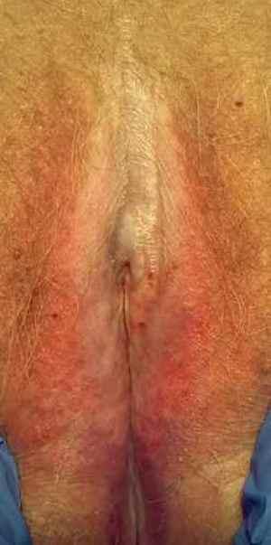 lichen sclereux