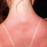 ALLERGIE AU SOLEIL : allergie de peau et boutons au soleil (visage, bras, décolleté… )