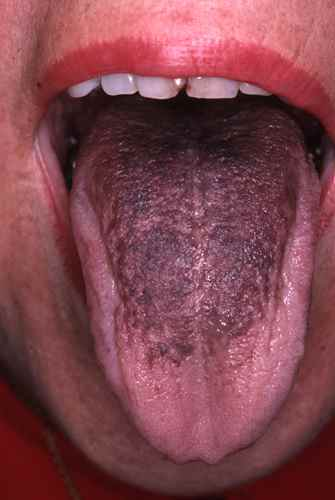 infection buccal langue
