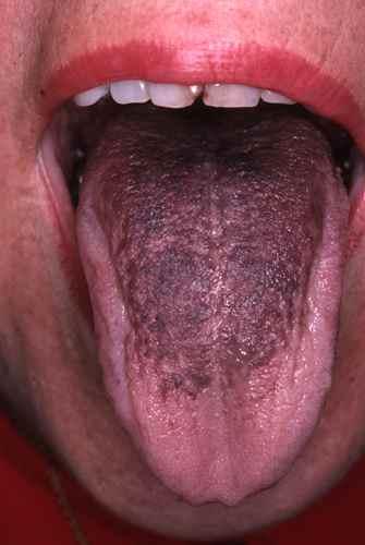 bouton au fond de la langue mycose