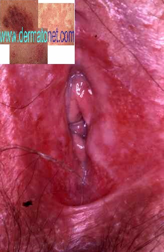 Le psoriasis la définition et le traitement