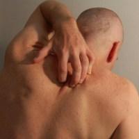DEMANGEAISON DE LA PEAU : la peau qui gratte (gratelle) ou démangeaisons