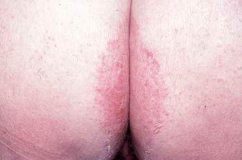 Mycose entre les fesses