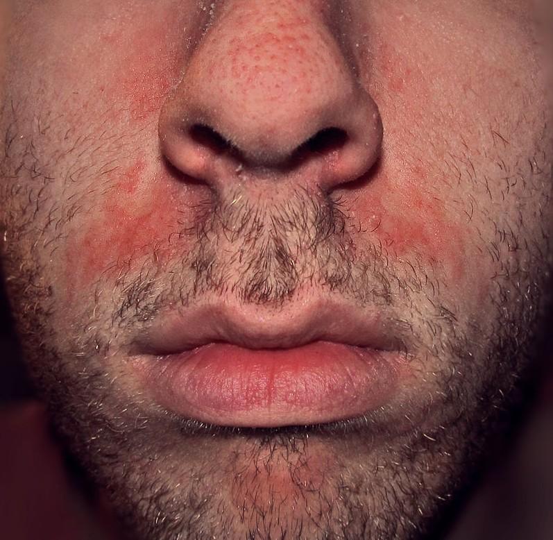 plaque de bouton rouge sur le visage
