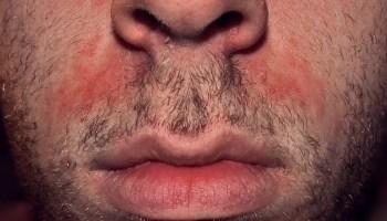 La soude au psoriasis de la tête