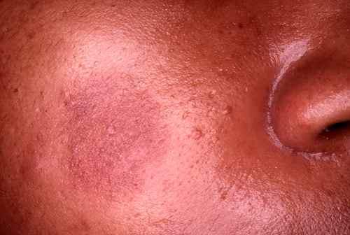 Erytheme pigmenté fixe