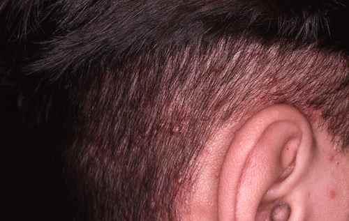 Beliebt BOUTONS CUIR CHEVELU : des boutons dans les cheveux - Dermatologue  WA35
