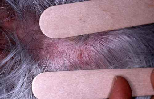 infection cuir chevelu ganglion