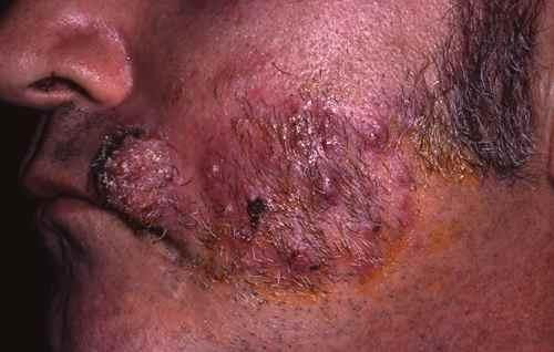 Kerion de la barbe