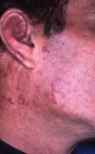 Lupus cutané chronique typique