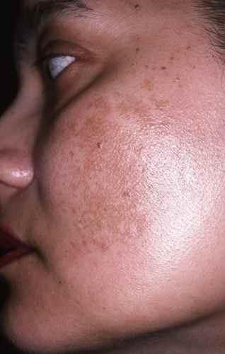 Masque de grossesse des joues
