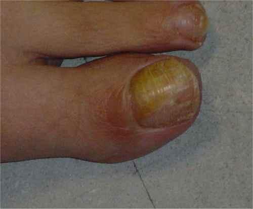 Mycose jaune de l'ongle