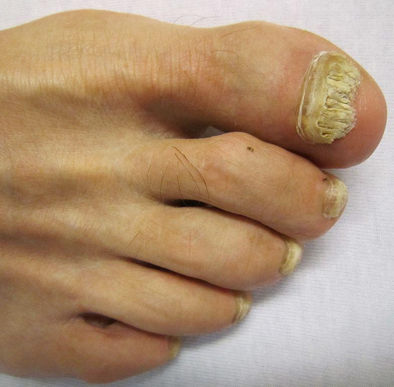 faux ongles de pieds mycose