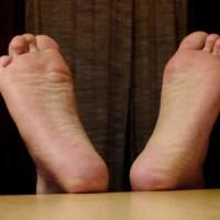 MYCOSE DES PIEDS : soigner la mycose (ou champignon) des pieds