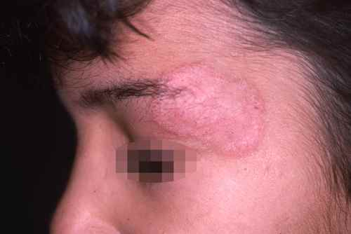 Mycose du visage, noter la bordure et la dépilation du sourcil
