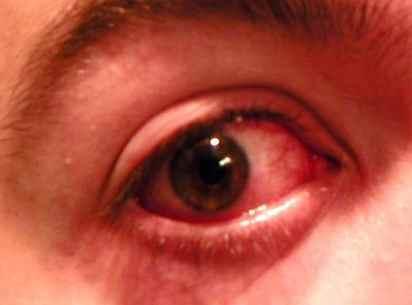 oeil-rouge.jpg