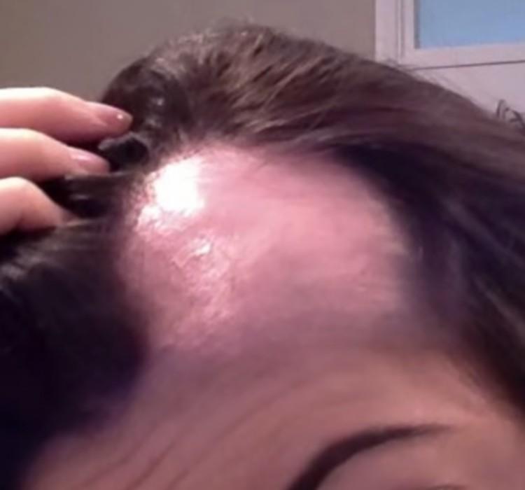 gale dans les cheveux