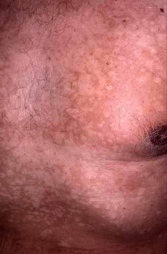 Lalimentation de poitrine les taches de pigment