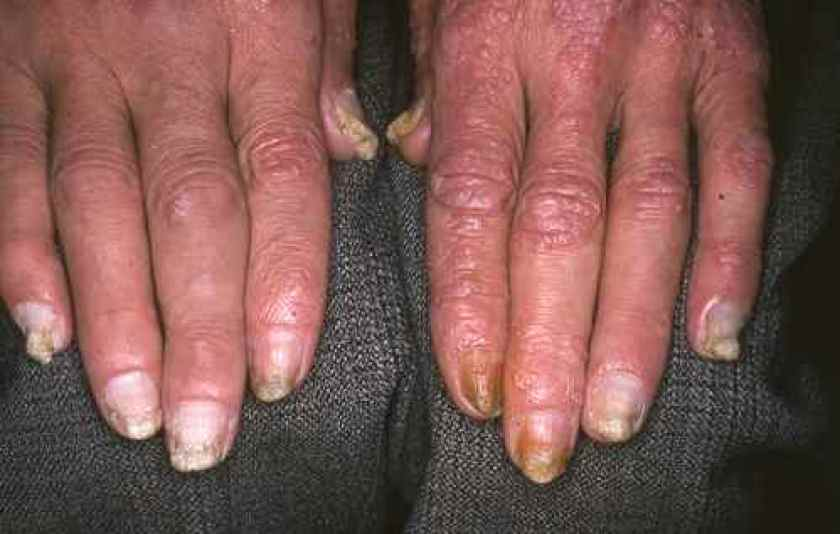 Psoriasis des ongles, avec atteinte de la peau et des articulations (rhumatisme psoriasique)