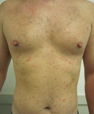 PITYRIASIS ROSE : durée, causes, symptomes, traitement du ...