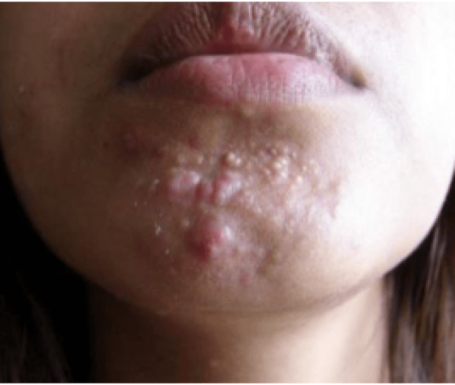 Nodular Or Cystic Acne Is Characterized By Deep And Painful Bumps These Acne Nodules And Cysts Are Filled With Blood And Pus They Can Linger Under The